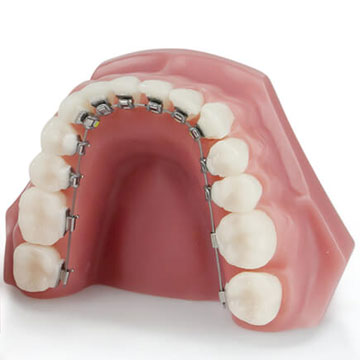 Material Aparat Dentar Safir Fix